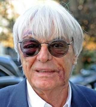 Agression de Bernie Ecclestone : l'octogénaire salement abimé !