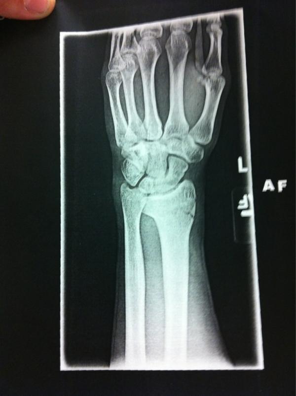 SX 2012 : Ken Roczen se blesse et sera donc à l'Est