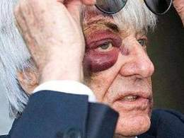 Agression de Bernie Ecclestone : l'octogénaire salement abimé !