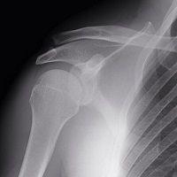 Superbike - Moscou: Sylvain Guintoli blessé à l'épaule met sa saison en danger